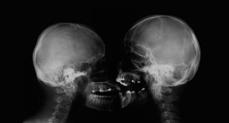 Skull Kissin'